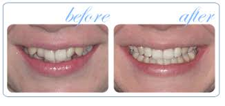 lingual braces before and after
