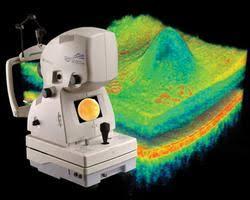 oct tomography
