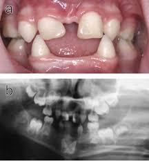dental abnormalities