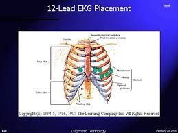 12 lead ekg electrode placement