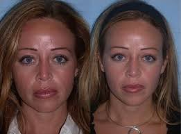 glycolic peels before and after