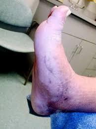 foot neuromas