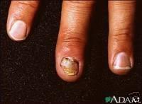 damaged nail beds