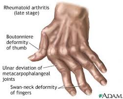arthritis hands pictures
