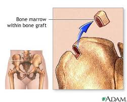 marrow of a bone