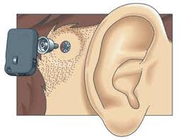 bone anchored hearing aid