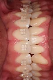 ceramic braces before and after