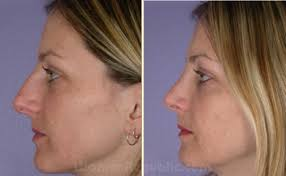 nose job pictures