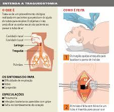paciente con traqueostomia