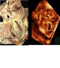 3d echocardiogram