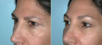 endoscopic brow lifts