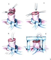 femoral vein cannulation