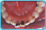black stains on teeth