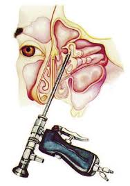 fiber optic endoscopy