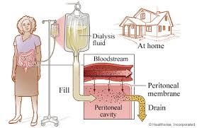 dialysis peritoneal
