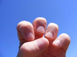 dry cracked fingers