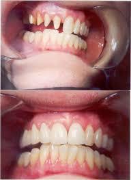 fixed bridge teeth