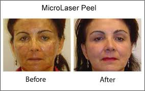 laser skin peel