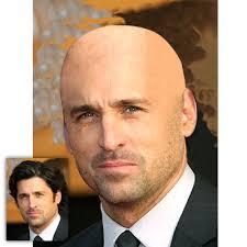 bald photos