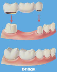 dental bridges photos