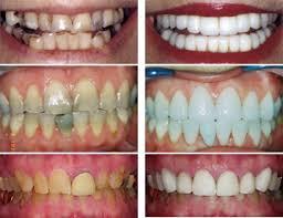 dental makeover