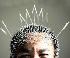 chinese acupuncturist