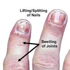 brittle fingernail