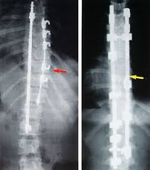 scoliosis surgeries
