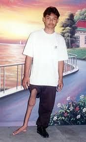 leg brace images