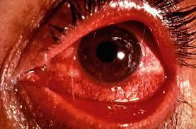 eye illness