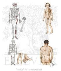 dysplasia fibrosa