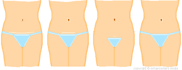 abdominoplasty scars