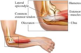 Tennis Elbow Tips