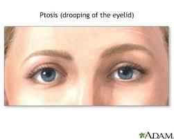 drooping lower eyelid