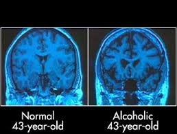 alcohol damage brain