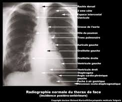 radio thorax