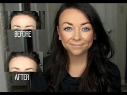 hair to hide forehead wrinkles how to get rid of forehead wrinkles youtube