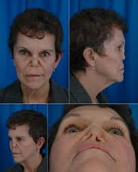 saddle nose deformity rhinoplasty archive