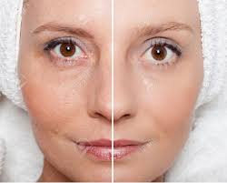 beauty concept skin care anti aging procedures rejuvenation