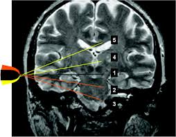 transcranial color coded sonography successfully visualizes all