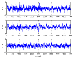 sensors free full text automatic artifact removal in eeg of