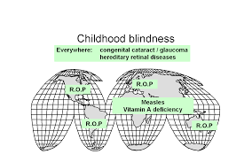 Time Blindness Who Blindness Vision 2020 Control Of Major Blinding Diseases