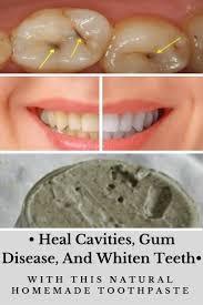 best 25 natural teeth whitening ideas on pinterest teeth