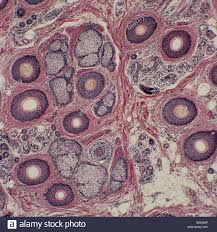 pilonidal cyst histology skin histology stock photos u0026 skin histology stock images alamy