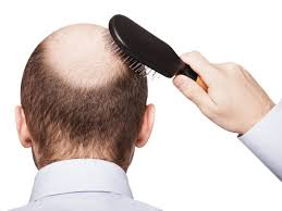 9 effective ways to stop hair loss in men organic facts