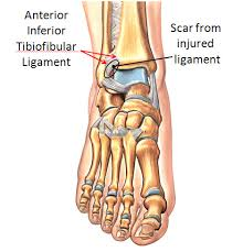 Posterior Inferior Tibiofibular Ligament Anterolateral Ankle Impingement Footeducation