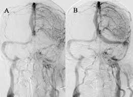 manual aspiration thrombectomy for cerebral venous sinus