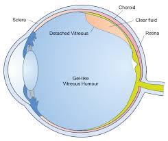 liquid light guide vitreous detachment information symptoms posterior vitreous