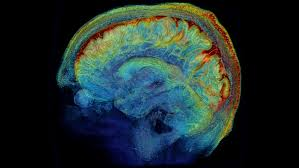 the brain in exquisite detail the new york times