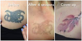 tattoo removal options erase tattoo removal how many laser